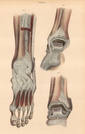 """Lizars: Foot and ankle, plate LIV. An original colour antique steel engraving. 10"""" x 17"""". [NATHISp7082]"""